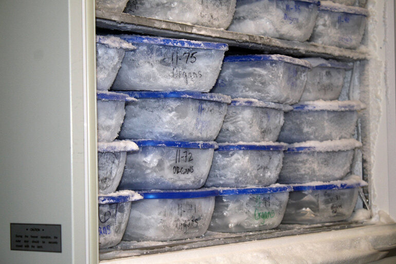 Donated organs are stored in the freezer at a research institute in Arizona.